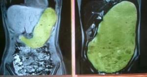 胃袋の画像